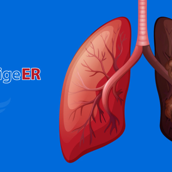How to Prevent Lung Disease