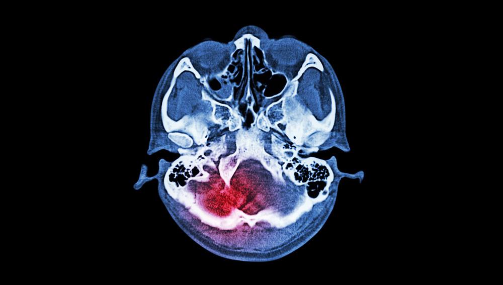 Time-Critical Medical Emergencies brain injury